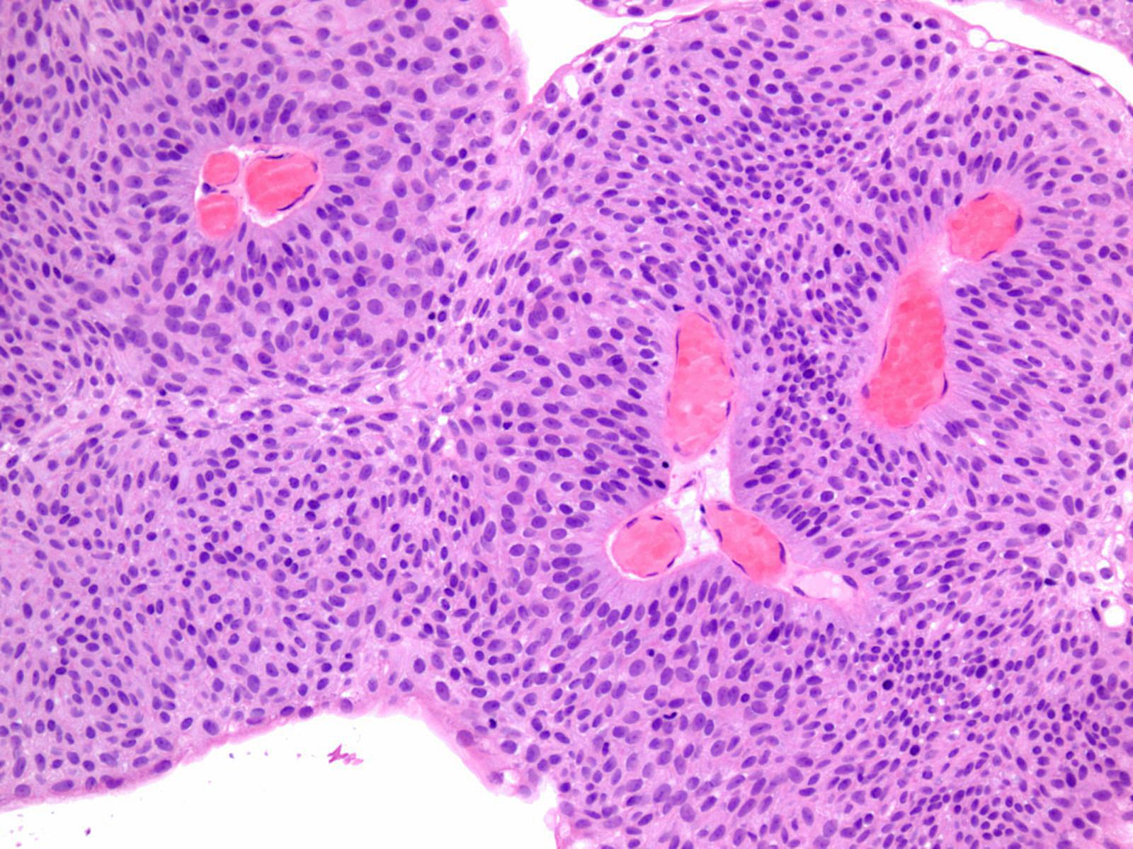 papillary urothelial carcinoma description