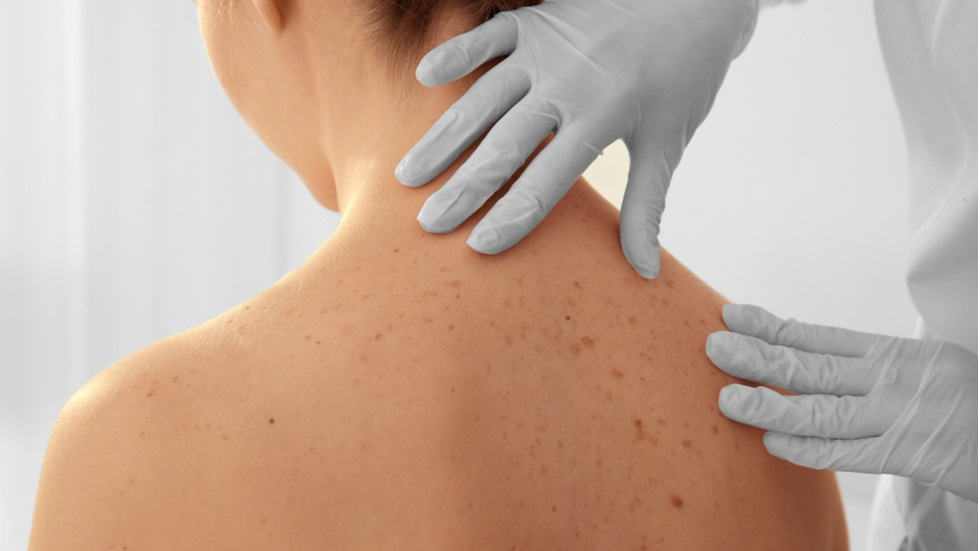 cancer de piele copil