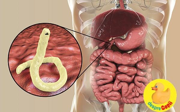 paraziti intestinali mancarime piele sirop viermisori bebelusi