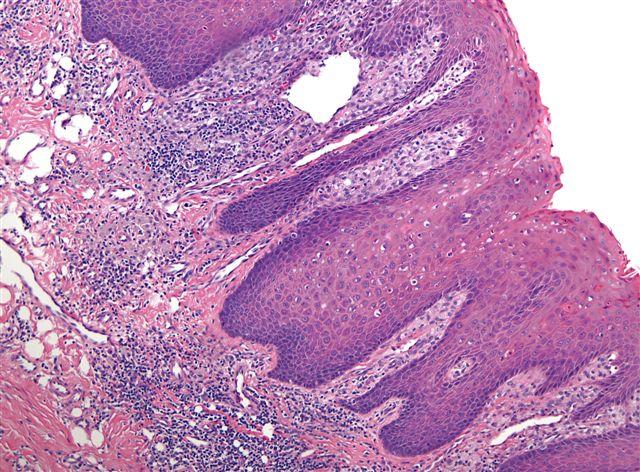 squamous papilloma of tongue pathology outlines