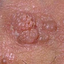 un papillomavirus en arabe)