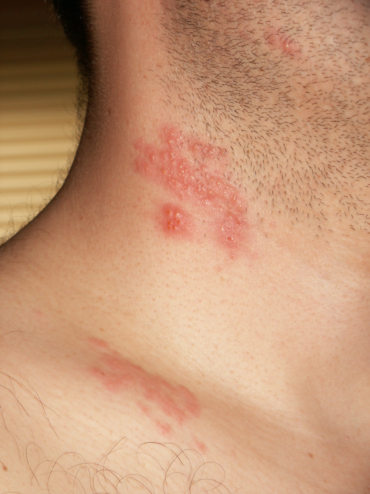 herpes y de papiloma