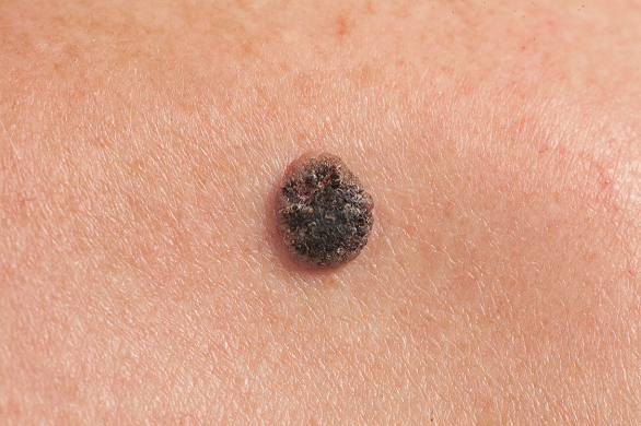 Metastazele in cancerul de piele