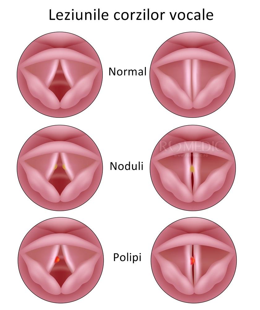 cancer malign la coarda vocala