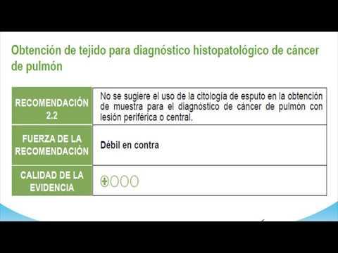 Radonul creste riscul de cancer pulmonar? - Cancer De Plamani - 2019