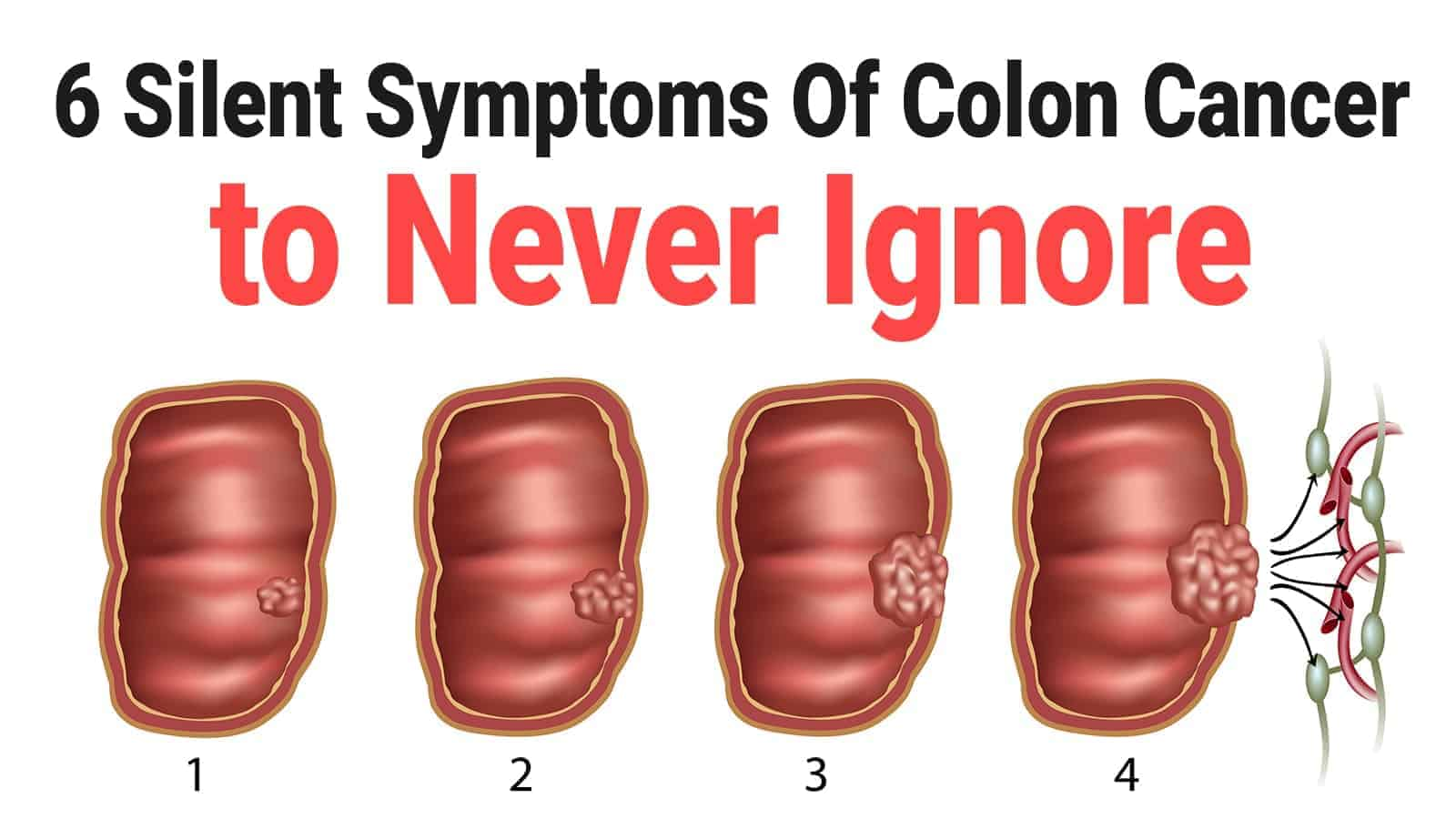 cancer colon pain)