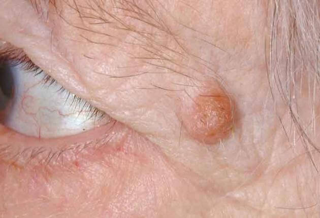 papilloma near eye)