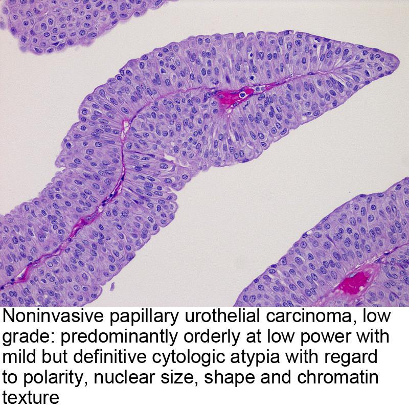 papillary urothelial carcinoma images