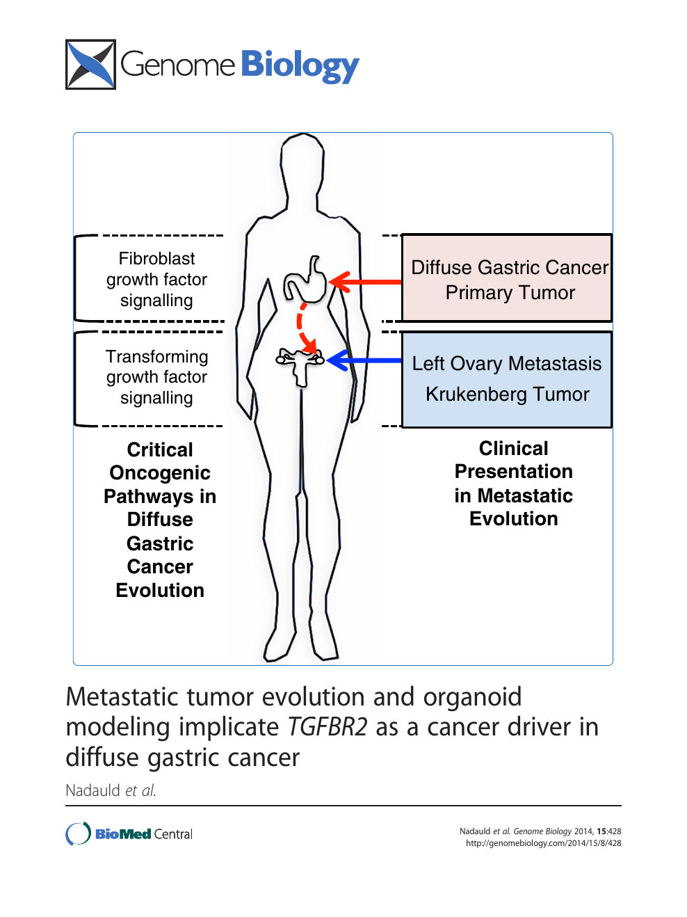 gastric cancer with ovarian metastasis