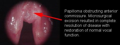 multiple papilloma of larynx)