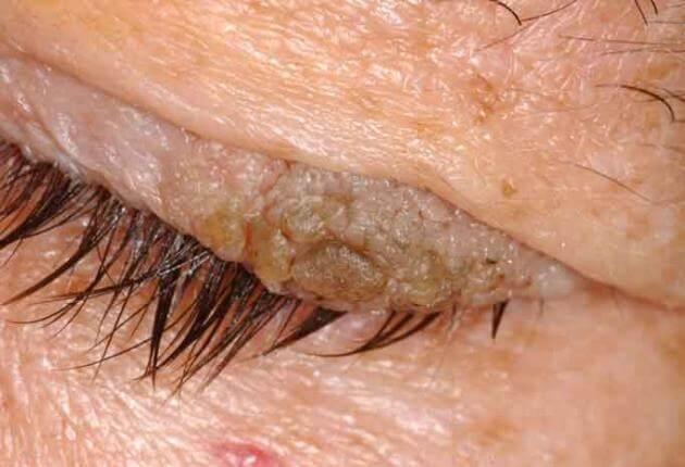 papilloma on eyelid rim)