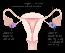 Cistadenom de histologie ovario