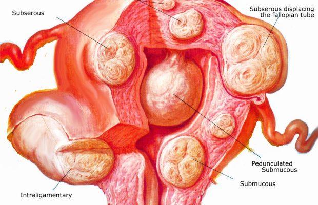 cancer uterin fibrom