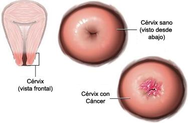 papiloma humano contagio con preservativo