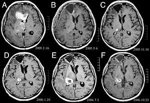 cancer cerebral nombre)
