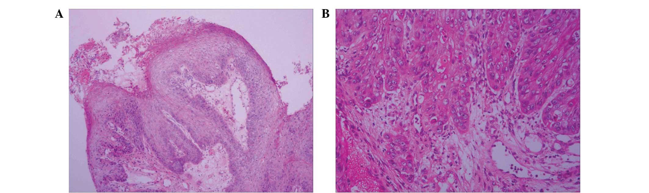 papilloma vs squamous cell carcinoma