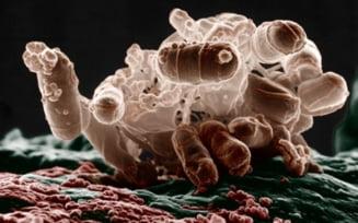 bacterii in apa