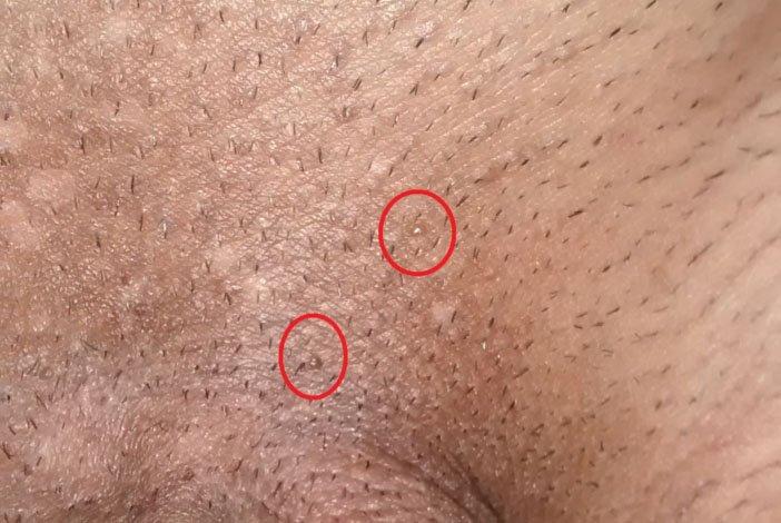 papilloma virus contagios