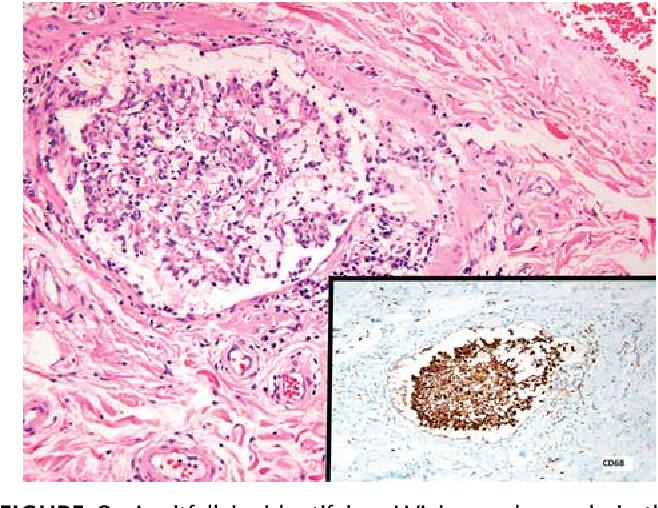 human papillomavirus in esophagus