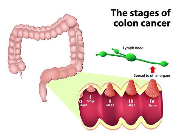 cancer colorectal diagnostic)