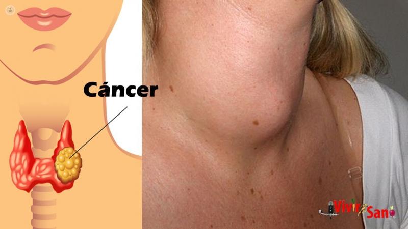 cancer a laringe