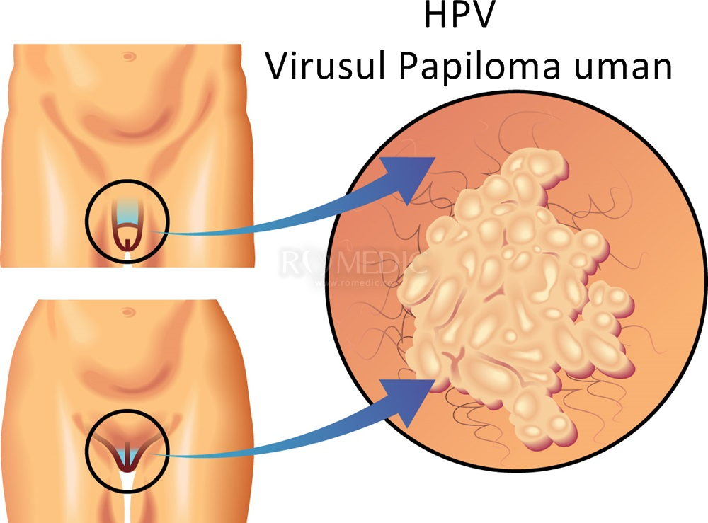 papillomavirus la femei)