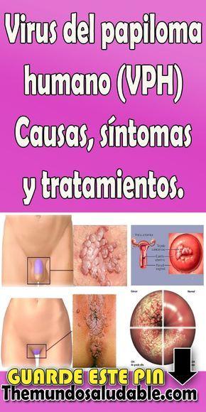 que es el papiloma humano causas y sintomas