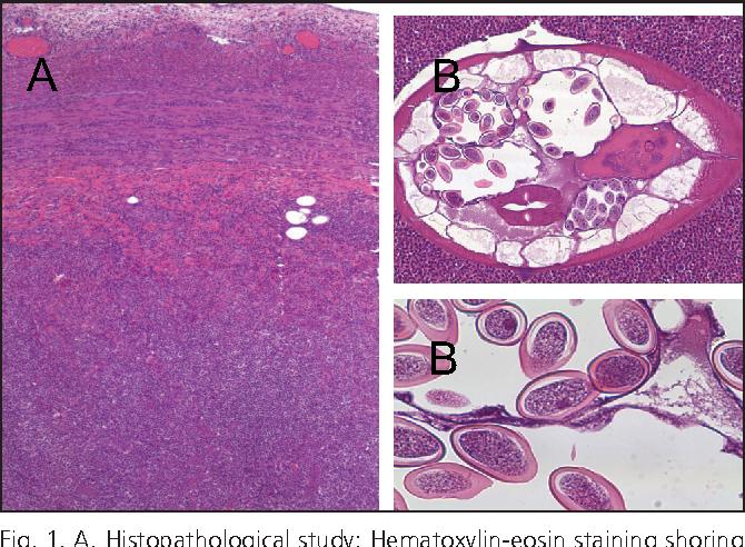 enterobius vermicularis patologia)