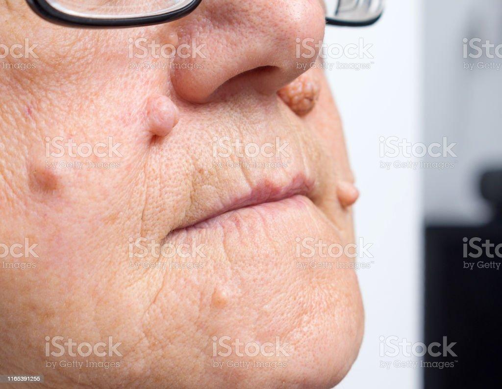 benign cancer on face)