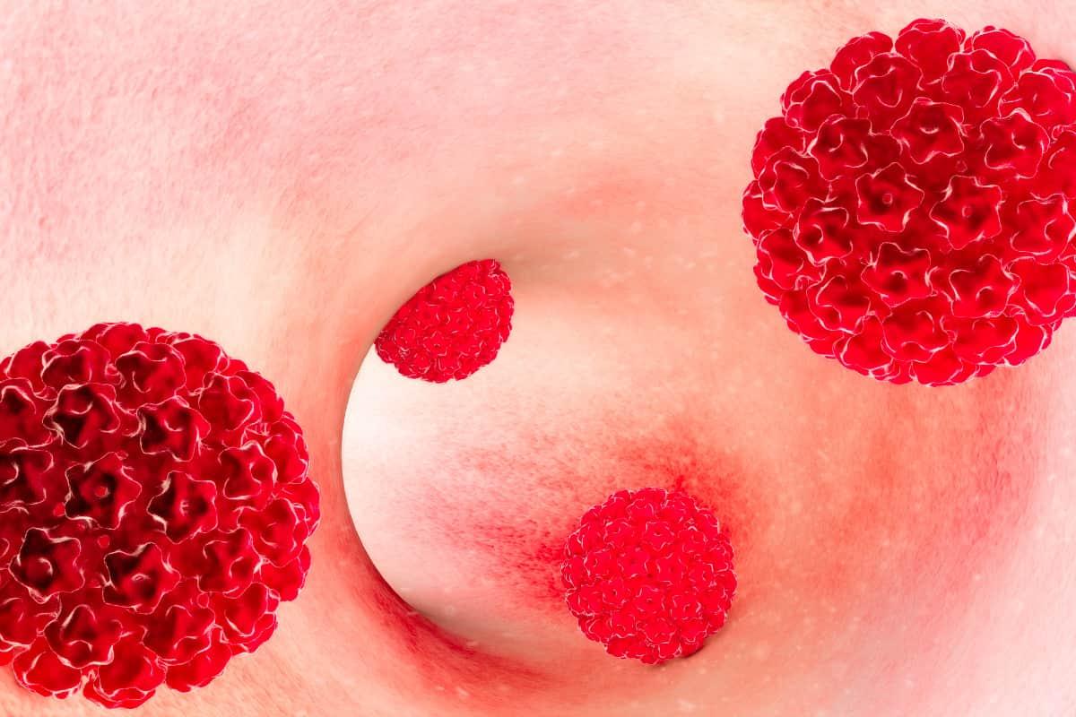 tumore allutero papilloma virus)