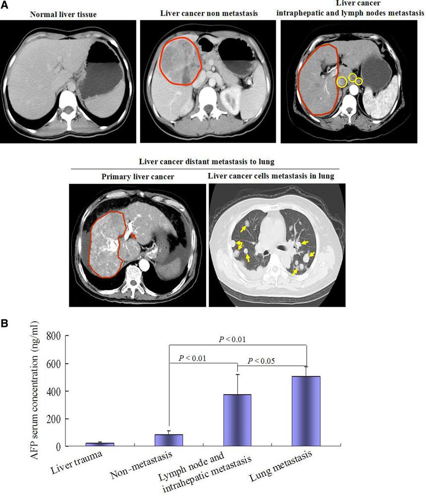 metastatic cancer hcc)