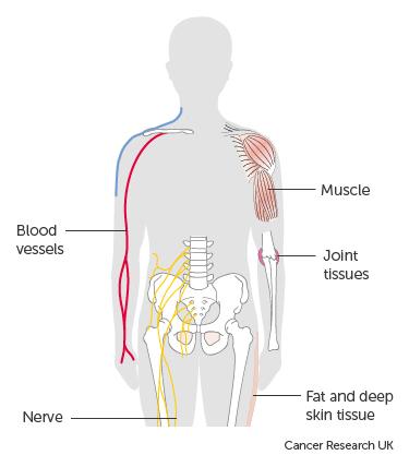cancer sarcomas)