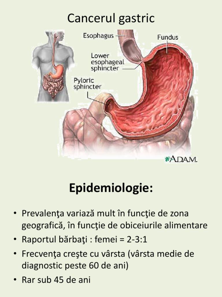 AMG: Oncologie si nursing în oncologie , C14 CANCERUL DE PROSTATA