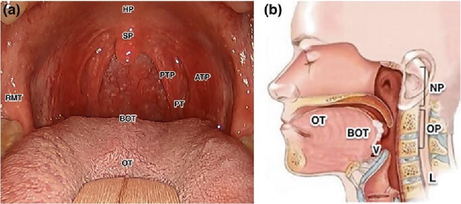 papilloma on eyelid removal