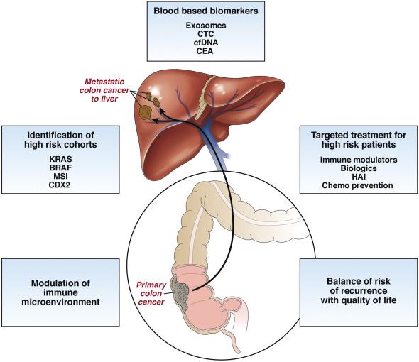 cancer colon metastatic)