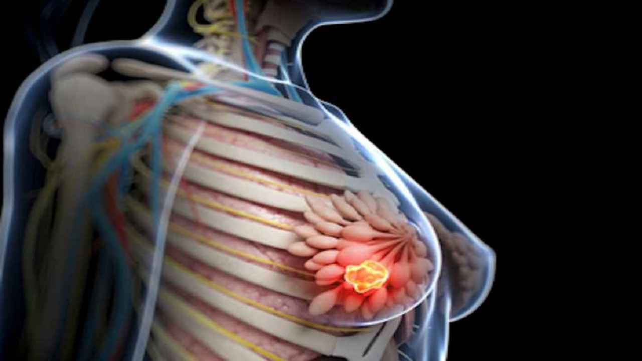 Cancer la san (mamar) - Tot ce trebuie sa stii | Cancer