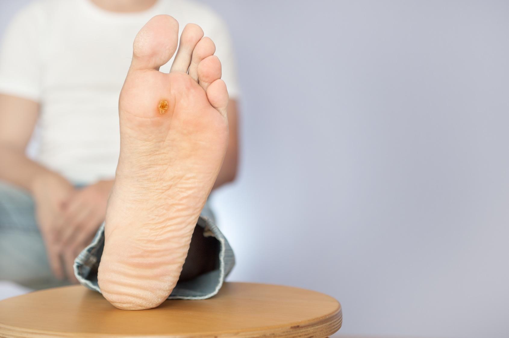 virus papiloma humano verrugas piel