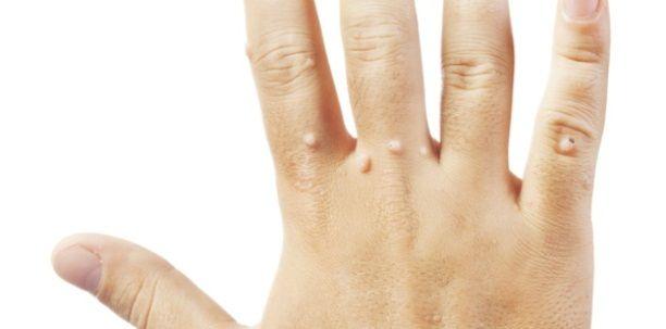 Menopauza - naturalny proces fizjologiczny - BJ medical