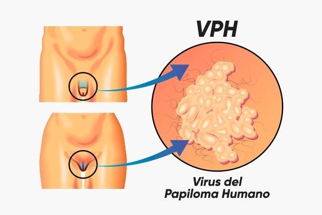 virus del papiloma humano sintomas principales)
