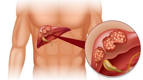 Regim alimentar in cancerul de ficat - Edumedical