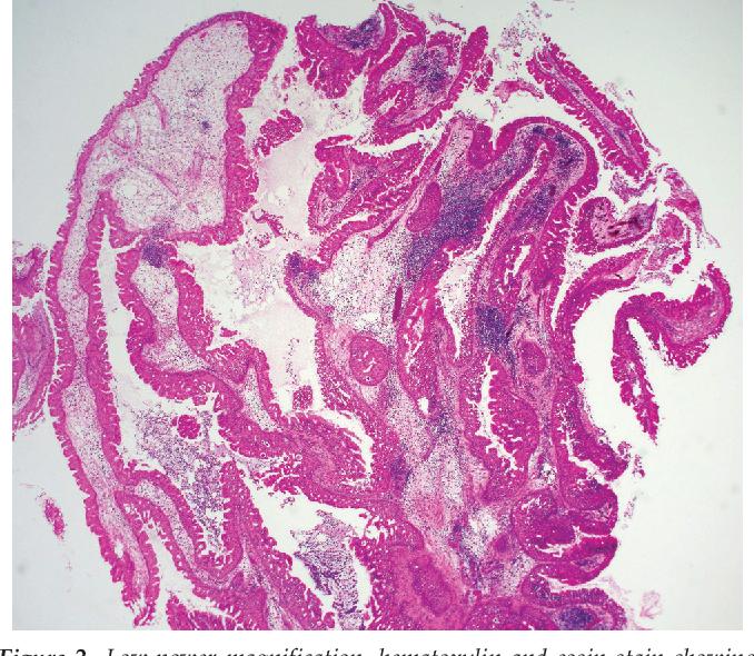 schneiderian papilloma oncocytic