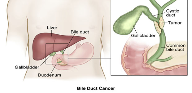 cancer in hepatic duct