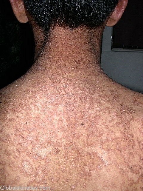 does confluent and reticulated papillomatosis go away)