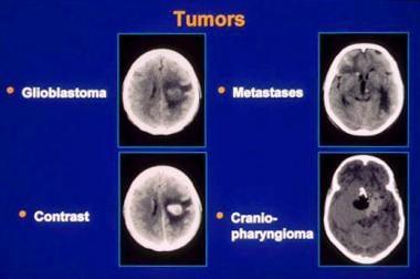 hpv brain tumors)