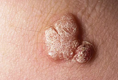 hpv little warts)