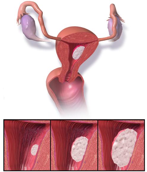Cancerul endometrial. Particularităţi clinice, ultrasonografice şi histologice