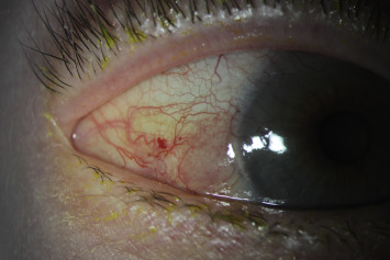 conjunctival papilloma cimetidine