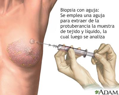 papiloma intraductal durante el embarazo)