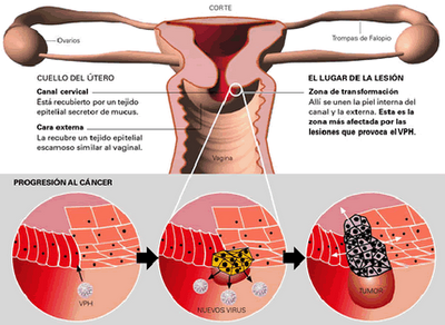 virus papiloma humano causas)