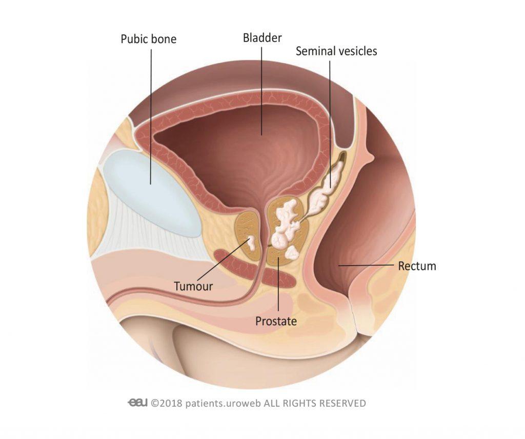 Prostate tumorale focusin comentarii